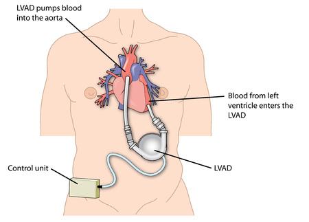 Heartware Ventricular Assist Device Lawsuit