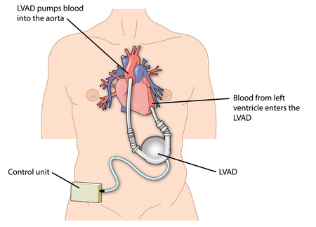 Heartware Ventricular Assist Device