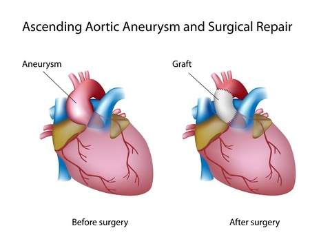 Levaquin Aortic Aneurysm