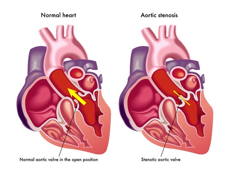Levaquin Aortic Dissection