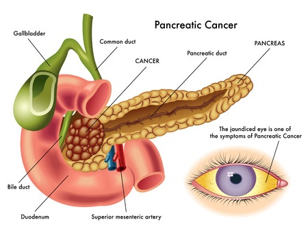 Nesina Pancreatic Cancer