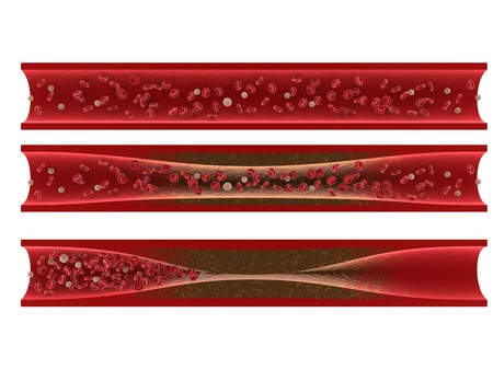Tasigna Arteriosclerosis
