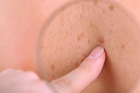 Viagra Melanoma Skin Cancer