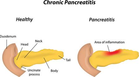 Viberzi Pancreatitis