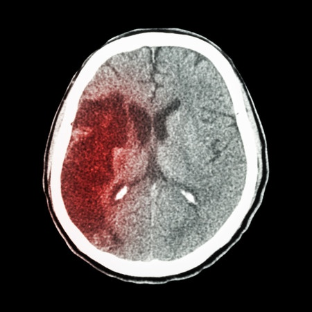 Xarelto Cerebral Hemorrhage