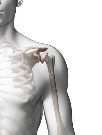 Zimmer Biomet Shoulder Replacement Class Action