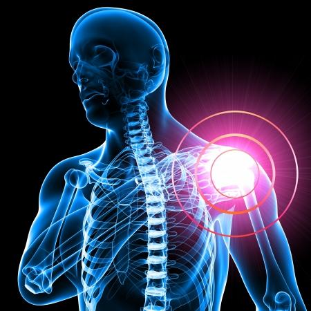 Zimmer Biomet Shoulder Replacement Lawsuit