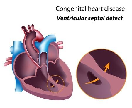 Zofran Ventricular Septal Defect