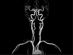 MRI Contrast Agent Dye Lawsuit