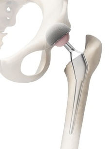 omni apex k2 hip implant recall